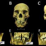 Bioarchäologische Studie: Afrikanische Sklaven in Mexiko