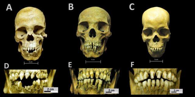 Schädel, Zahnmodifikationen dreier afrikanischer Sklaven aus Massengrab in Ciudad de México